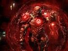 Injustice 2 - Xbox One